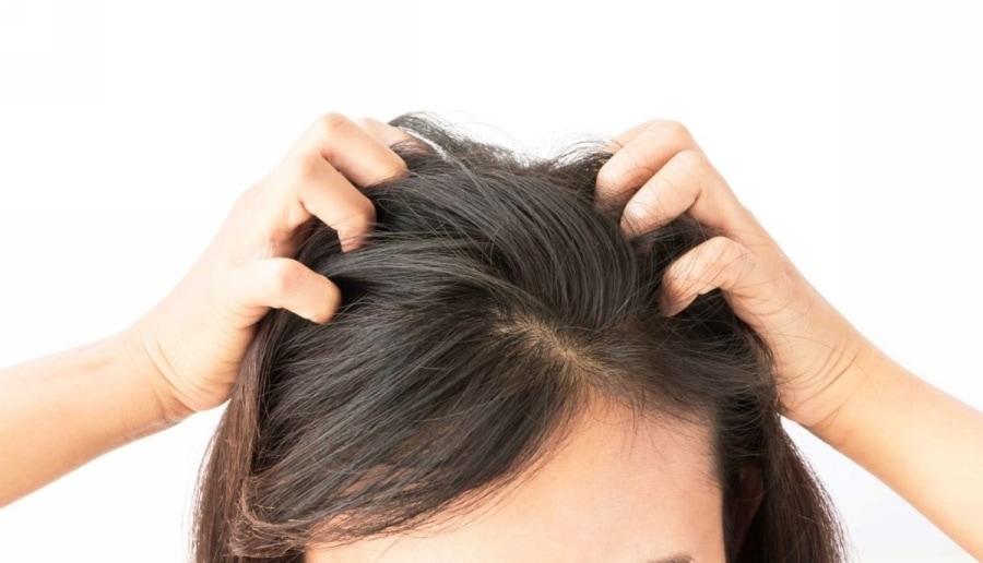 10 Modalități eficiente de a scăpa de mâncărimea scalpului