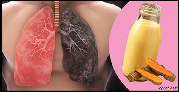 Băutură De Detoxifiere A Plămânilor – Ideală Pentru Fumători