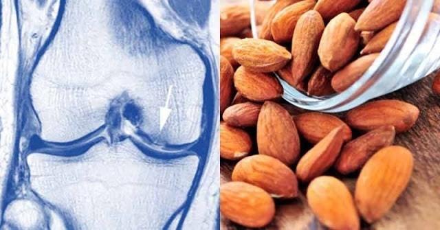 7 alimente care întăresc cartilajul oaselor și le restaurează rapid!