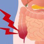 50% Din toate cazurile de cancer de colon ar putea fi prevenite dacă toată lumea ar face aceste 9 lucruri