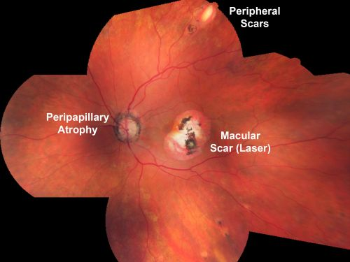 Ocular Histoplasmosis Pohs Old Macular Laser Scars