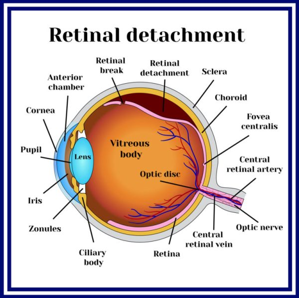 Retinal Tear & Detachment - Retina Vitreous Consultants, Inc