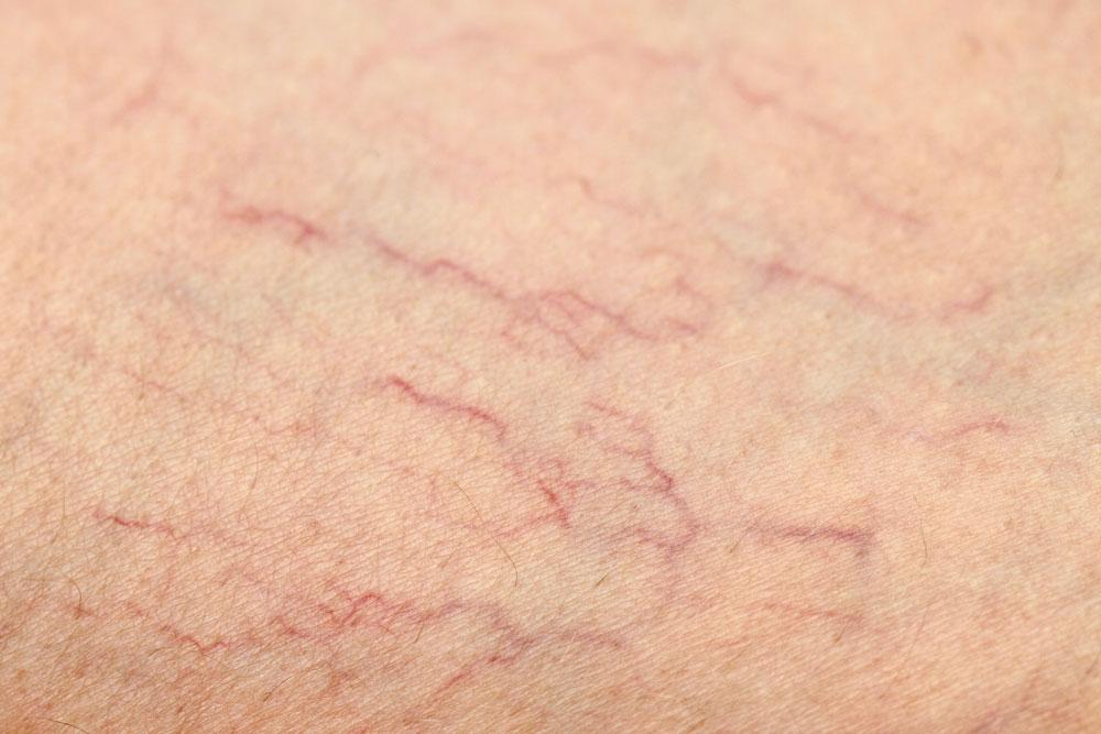 karsprænginger hud fjernelse københavn
