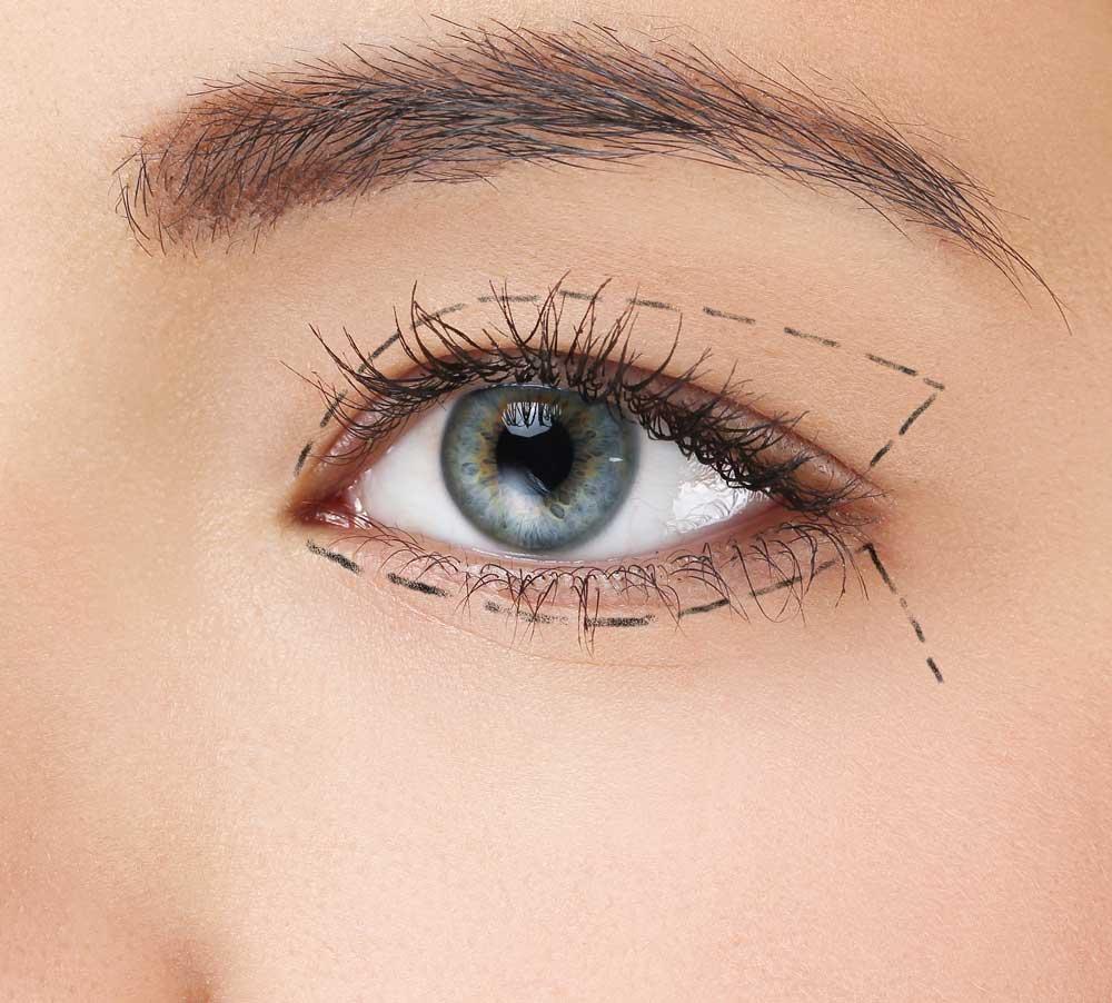 øjenlågsoperation plastikkirurgi københavn