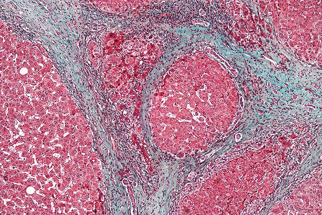 Microscopic image of a liver biopsy from a cirrhotic liver (trichrome stain.) The blue color highlights fibrous connective tissue, which forms band-like scars in between the liver tissue (which stains red.)
