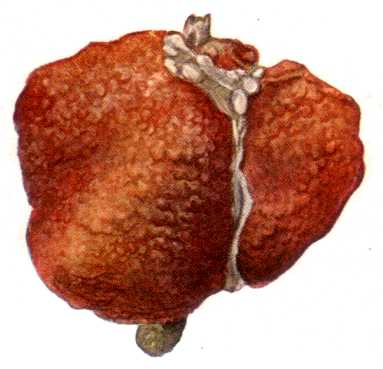 The appearance of a cirrhotic liver.