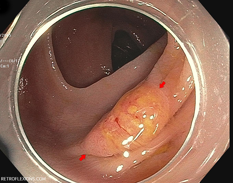 Flat ulcerated lesion (between red arrows) in the transverse colon showing the 'mucous cap' sign.