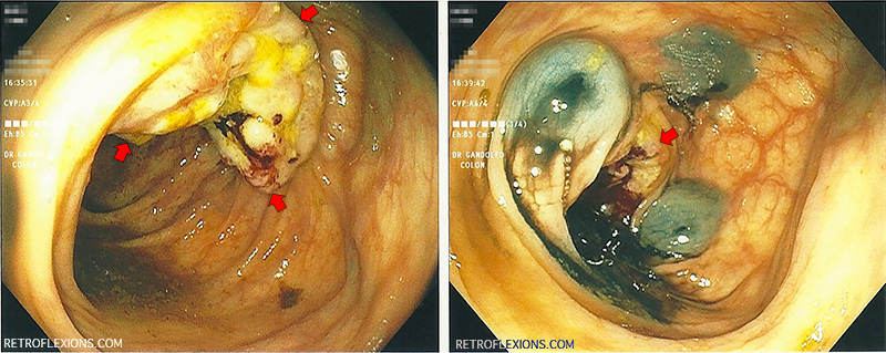 (L): ulcerated colon mass (adenocarcinoma) near the hepatic flexure. Red arrows show the edges of the mass; (R): Appearance of the colon after three tattoo marks placed. Red arrow shows location of mass.