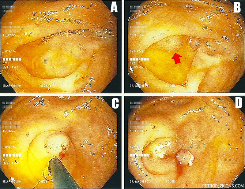 Find the hidden polyp! Colon cancer screening in action!