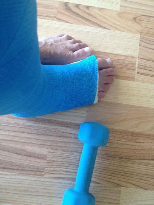 Rékasi Károly törött láb
