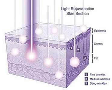LEDs penetrate into the layers of the skin