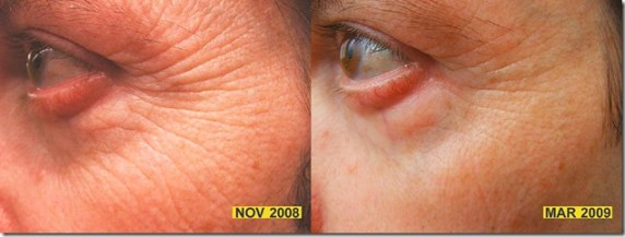 red light therapy before and after eye area