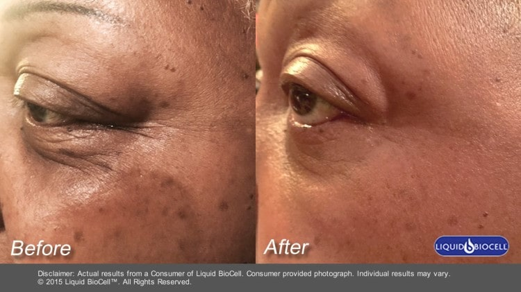 Liquid Collagen Takes Anti-Aging to a Whole New Level ...