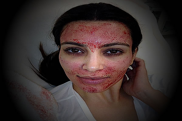 Kim Kardashian: Crazy, Bloody, Fool!