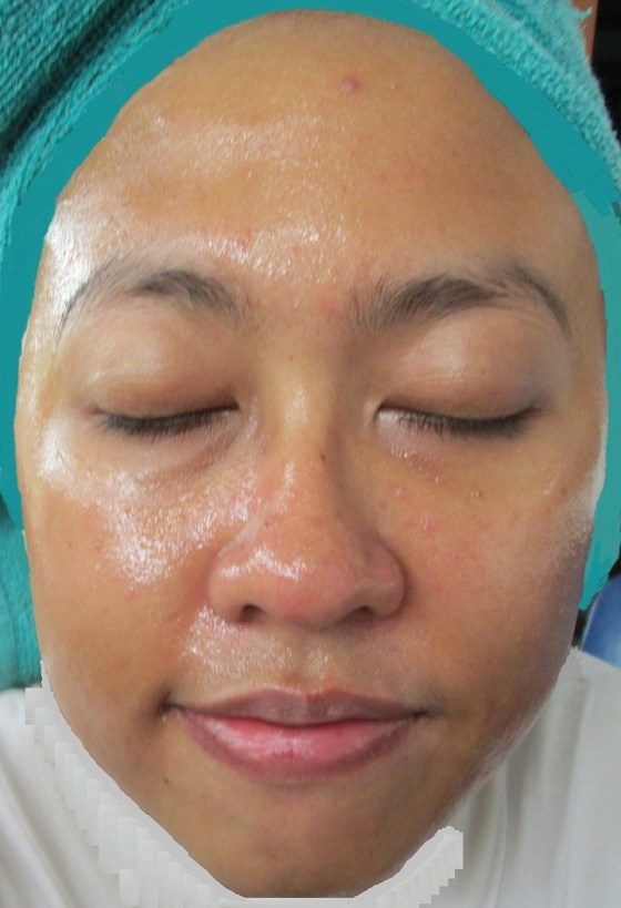 Face with Garnier Peel Off Mask applied