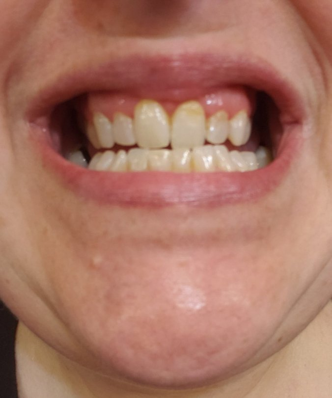 teeth after first use
