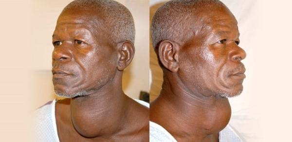 Goitre is a sign of iodine deficiency. Image credit betacharibletrust.org