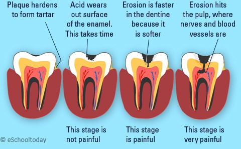 Stages in tooth decay. Image credit eschooltoday.com