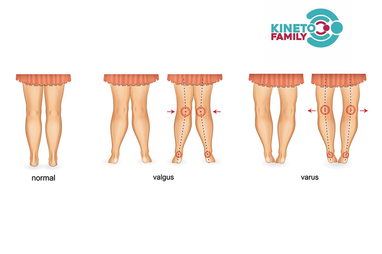 Deviaţiile genunchiului
