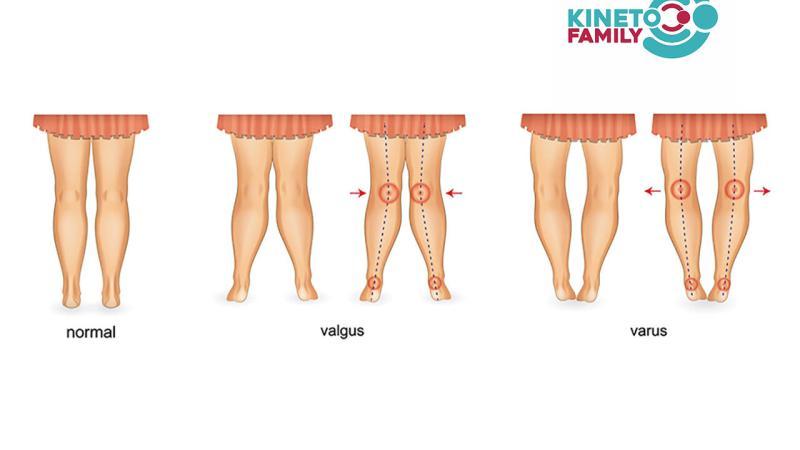 deviatiile-genunchiului