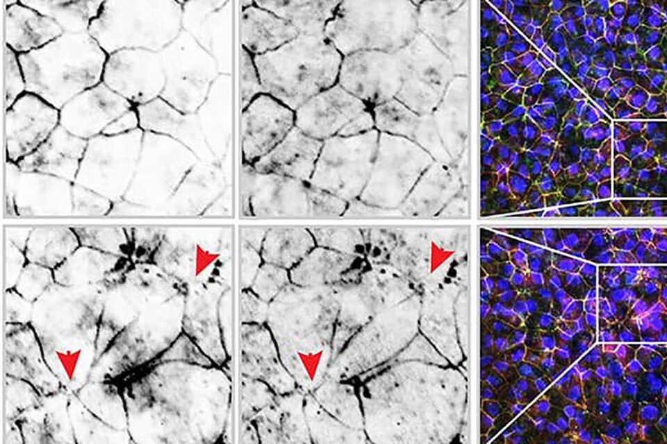 Țigările electronice declanșează inflamația în intestine (studiu)