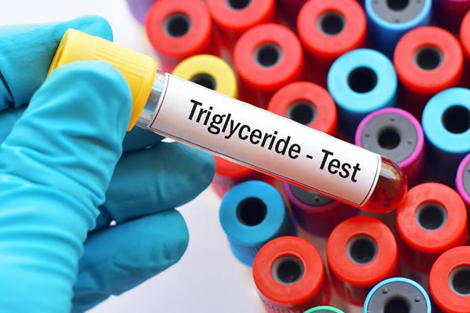 Trigliceridele, valori și consecințe