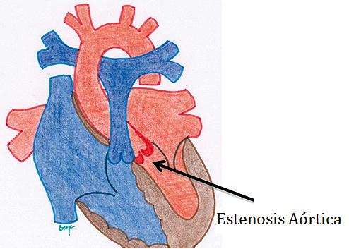 Anestesia para cirugía no cardíaca en pacientes pediátricos ...
