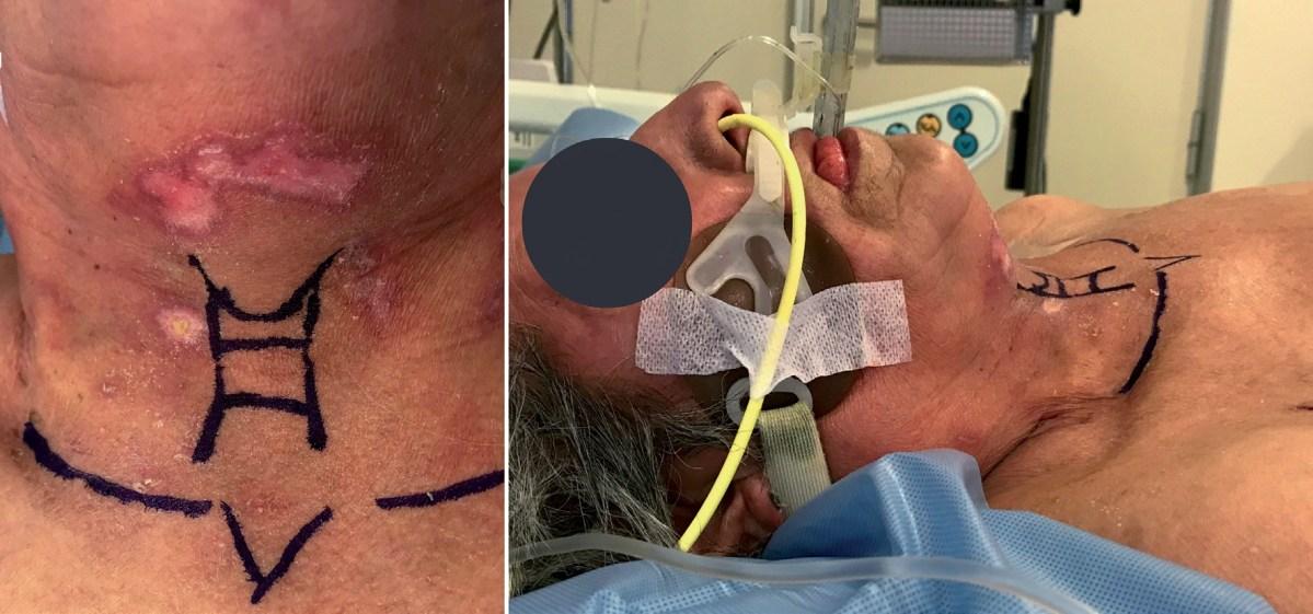 Traqueostomía percutánea por anestesiólogos: descripción de técnica con control fibro-broncoscópico directo y resultados en unidad de cuidados intensivos y grandes quemados