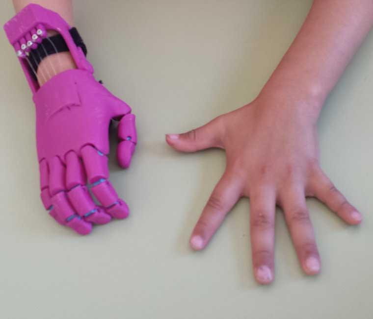 Los estudiantes han revisado varios modelos de prótesis