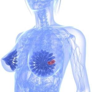 4-centrossomas-cancro-mama