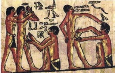 Desenho de uma pintura numa tumba, em Ankhmahor, no Egipto, representando médicos a realizar circuncisões a escravos.