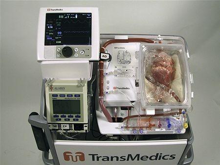 """A máquina """"heart in a box"""" em funcionamento"""