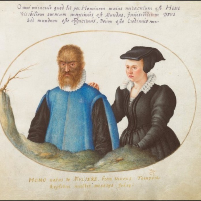 Petrus e Catarina Gonsalvus,  por Joris Hoefnagel (Animalia Rationalia et Insecta, Plate I, circa 1580, Washington, National Gallery of Art).