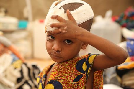 Refugiados de la RCA en Camerún. Herido cuando el camión que lo llevaba fuera de la RCA se volcó, este niño espera a que se le cambie la curación. © Laurence Hoenig/MSF