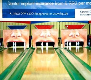 implantes-dCampañas Publicitarias que Llamarán tu Atención - Implantes Dentales