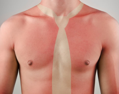 Proteger la piel en verano.