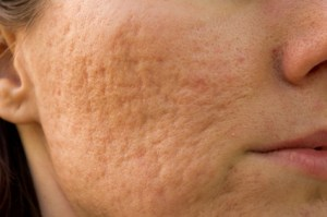 acne scars, acne scar treatment,