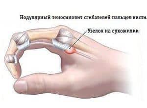 Теносиновит сухожилия. Как проявляется и лечится теносиновит сухожилия