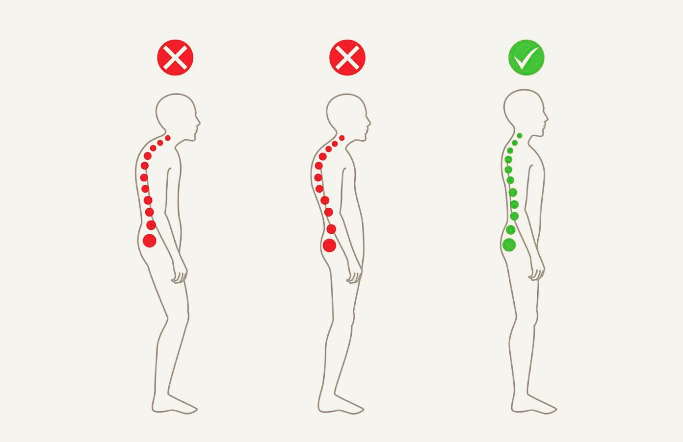 How Bad Posture Is Killing You