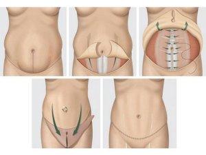 diagram of a tummy tuck
