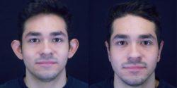 Ear Surgery - Otoplasty