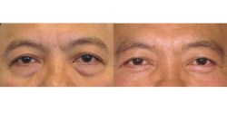 Blepharoplasty - Lower Lid