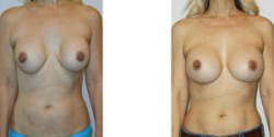 Silicone Breast Implant Revision