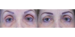 Blepharoplasty - Lower Lid *