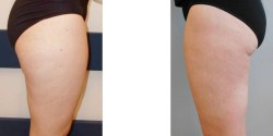 Body Contouring - Before and after pictures of liposuction of thighs