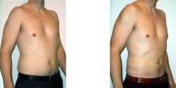 Liposuction - Abdomen and Flanks