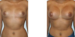 Las Vegas Silicone Breast Augmentation
