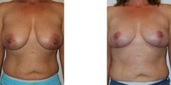 Las Vegas Breast Lift