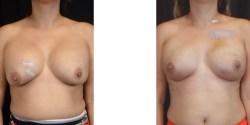 Las Vegas Breast Reconstruction