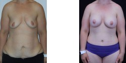 Abdominoplasty and liposuction of abdomen